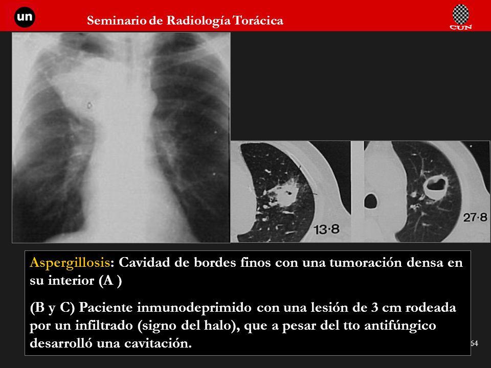 Seminario de Radiología Torácica 64 Aspergillosis: Cavidad de bordes finos con una tumoración densa en su interior (A ) (B y C) Paciente inmunodeprimi