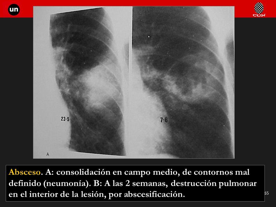 Seminario de Radiología Torácica 65 Absceso. A: consolidación en campo medio, de contornos mal definido (neumonía). B: A las 2 semanas, destrucción pu