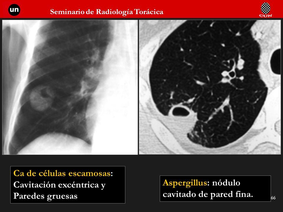 Seminario de Radiología Torácica 66 Aspergillus: nódulo cavitado de pared fina. Ca de células escamosas: Cavitación excéntrica y Paredes gruesas