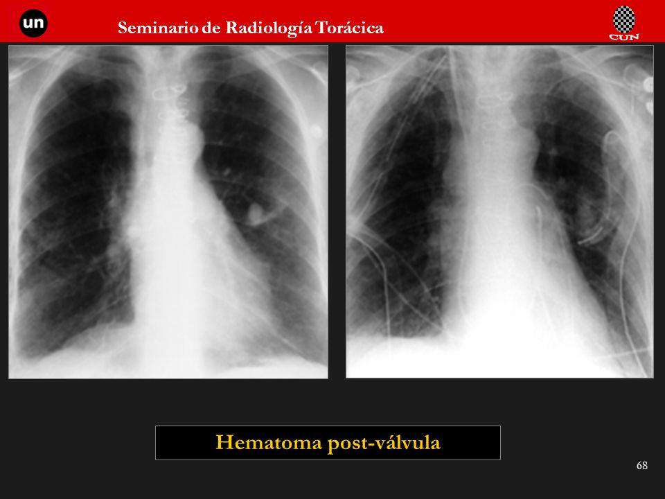Seminario de Radiología Torácica 68 Hematoma post-válvula