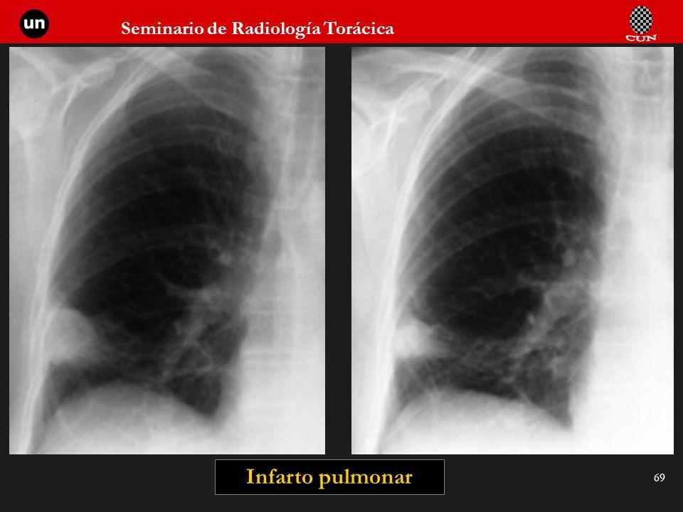 Seminario de Radiología Torácica 69 Infarto pulmonar