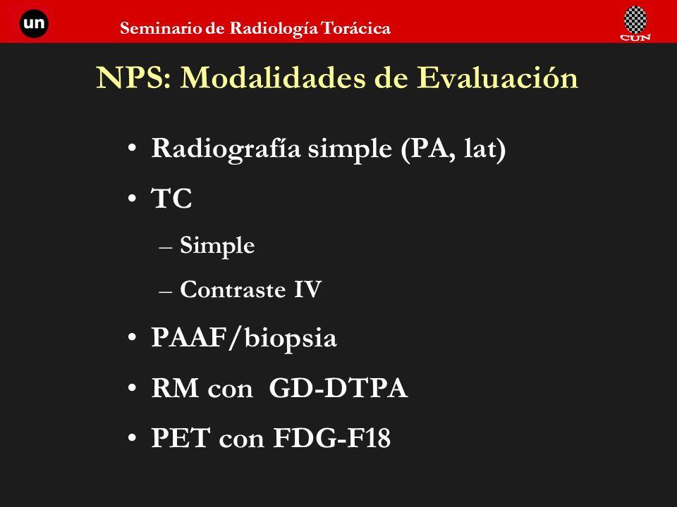 Seminario de Radiología Torácica NPS: Modalidades de Evaluación Radiografía simple (PA, lat) TC –Simple –Contraste IV PAAF/biopsia RM con GD-DTPA PET