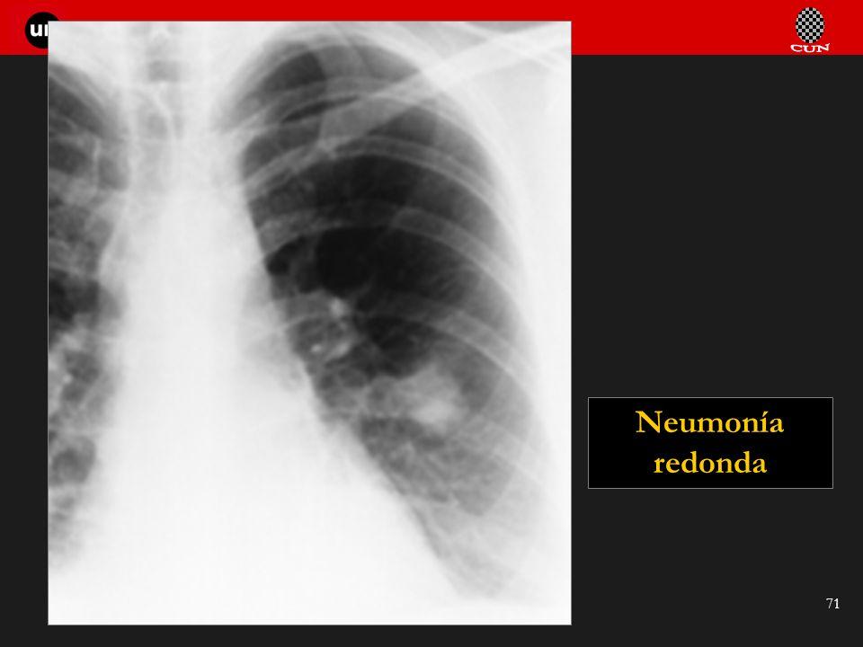 Seminario de Radiología Torácica 71 Neumonía redonda