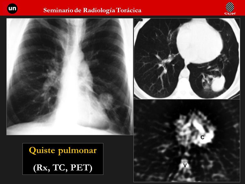 Seminario de Radiología Torácica 72 Quiste pulmonar (Rx, TC, PET)