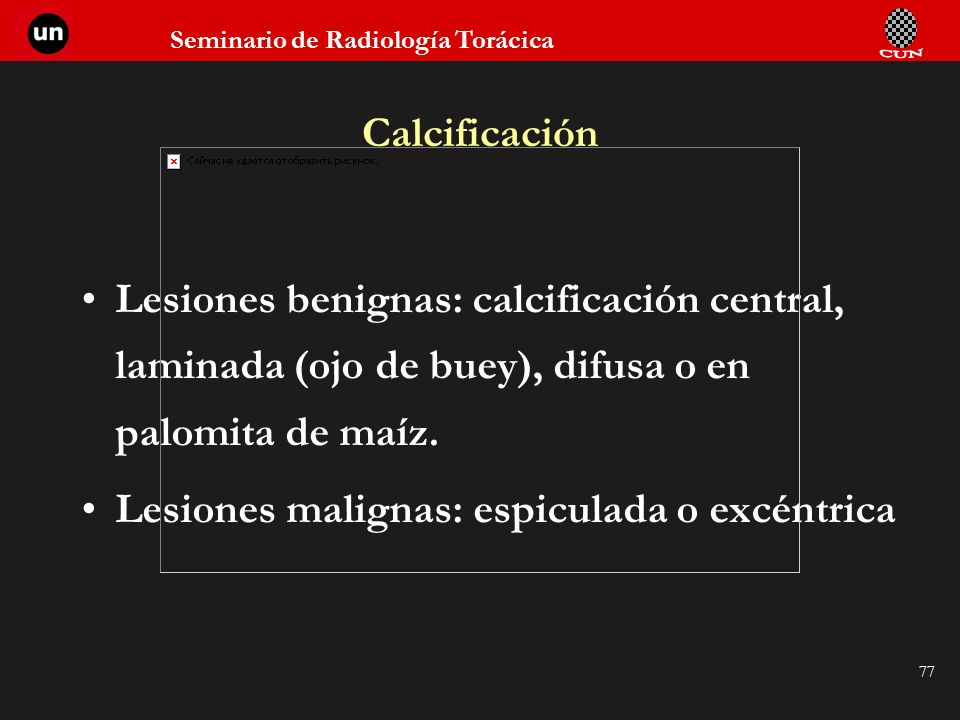 Seminario de Radiología Torácica 77 Calcificación Lesiones benignas: calcificación central, laminada (ojo de buey), difusa o en palomita de maíz. Lesi