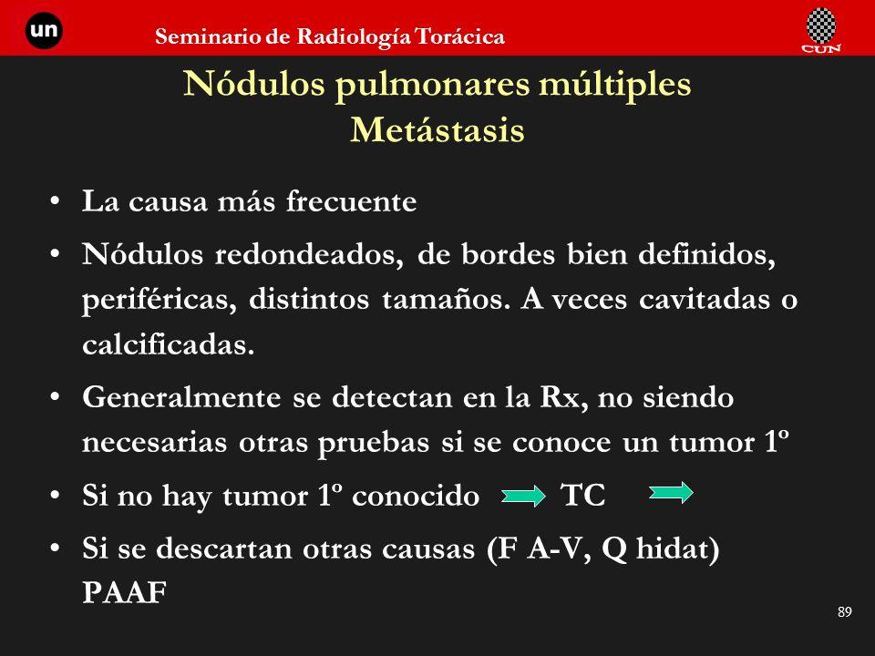 Seminario de Radiología Torácica 89 Nódulos pulmonares múltiples Metástasis La causa más frecuente Nódulos redondeados, de bordes bien definidos, peri