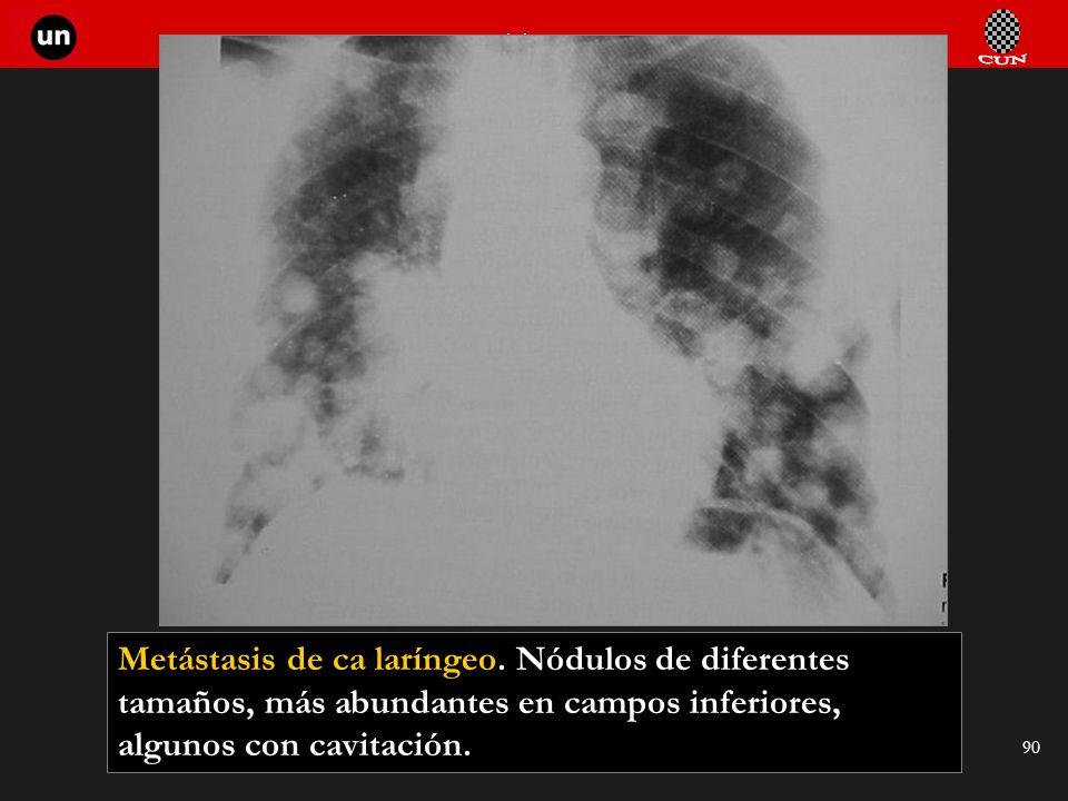 Seminario de Radiología Torácica 90 Metástasis de ca laríngeo. Nódulos de diferentes tamaños, más abundantes en campos inferiores, algunos con cavitac