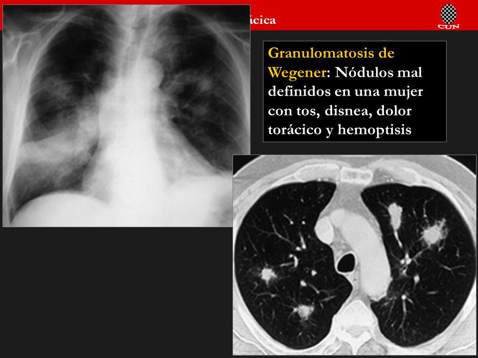 Seminario de Radiología Torácica 92 Granulomatosis de Wegener: Nódulos mal definidos en una mujer con tos, disnea, dolor torácico y hemoptisis