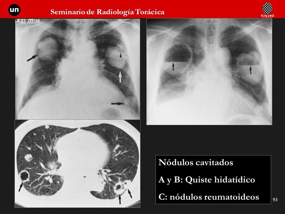 Seminario de Radiología Torácica 93 Nódulos cavitados A y B: Quiste hidatídico C: nódulos reumatoideos