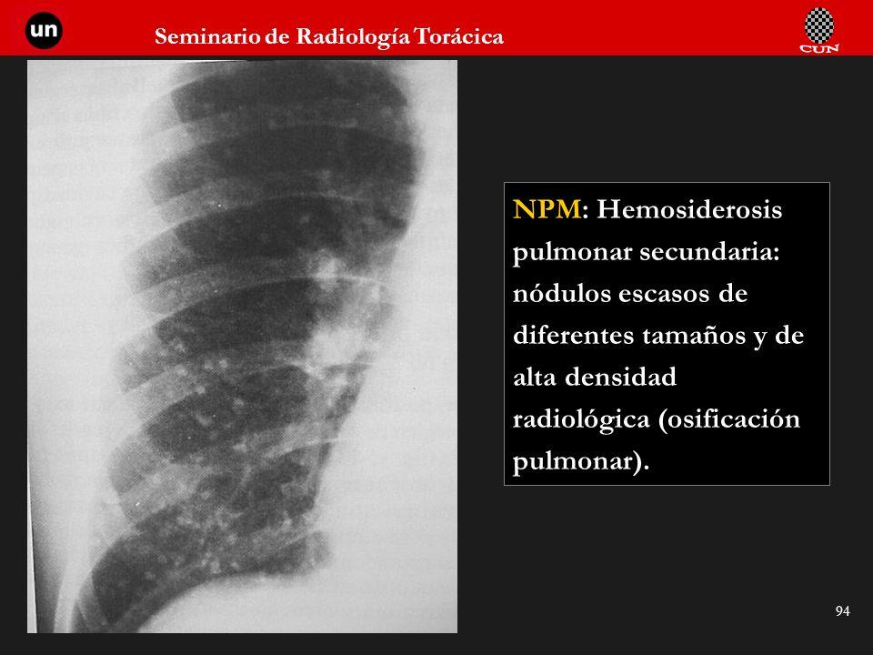 Seminario de Radiología Torácica 94 NPM: Hemosiderosis pulmonar secundaria: nódulos escasos de diferentes tamaños y de alta densidad radiológica (osif