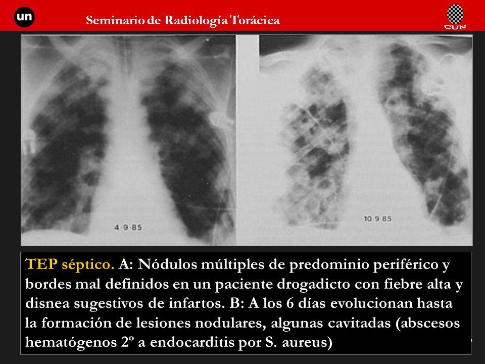 Seminario de Radiología Torácica 96 TEP séptico. A: Nódulos múltiples de predominio periférico y bordes mal definidos en un paciente drogadicto con fi