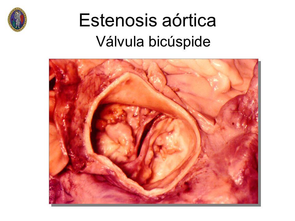 Estenosis aórtica Válvula bicúspide