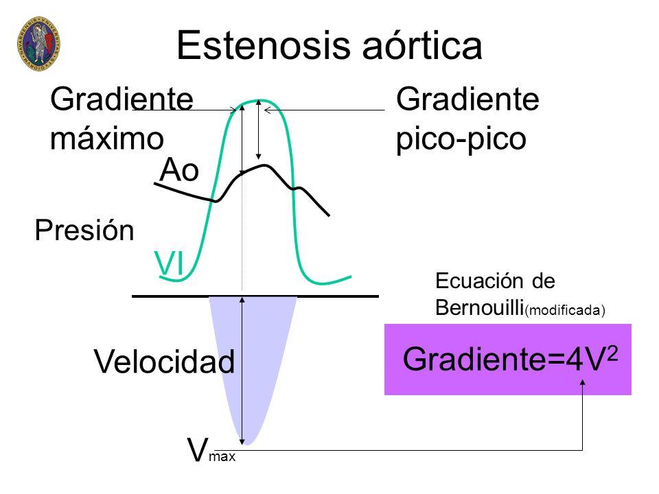Estenosis aórtica Gradiente pico-pico Gradiente máximo V max Gradiente=4V 2 Presión Velocidad Ecuación de Bernouilli (modificada) Ao VI