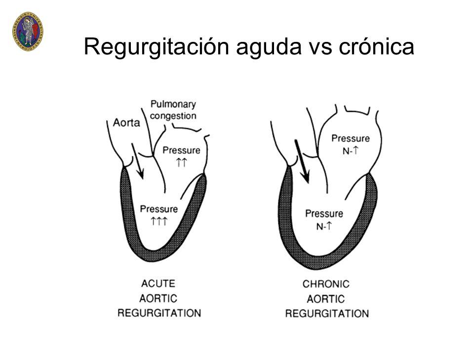 Regurgitación aguda vs crónica