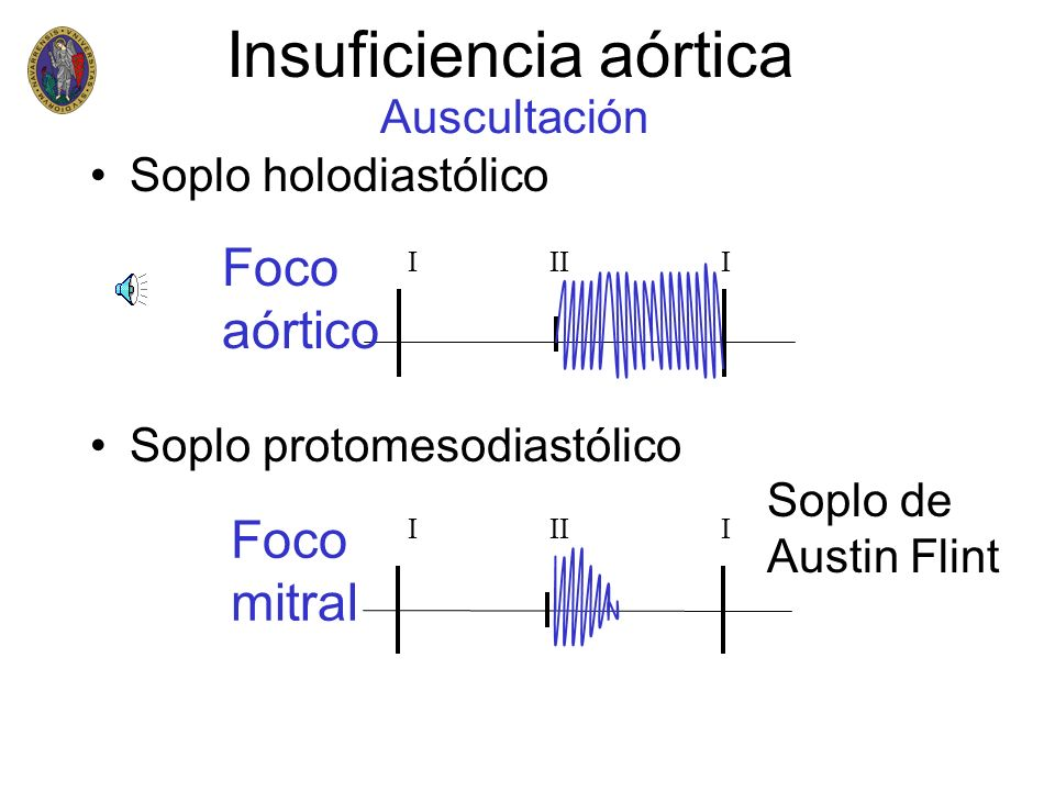 Insuficiencia aórtica Soplo holodiastólico Soplo protomesodiastólico Auscultación I II I Foco aórtico Foco mitral Soplo de Austin Flint