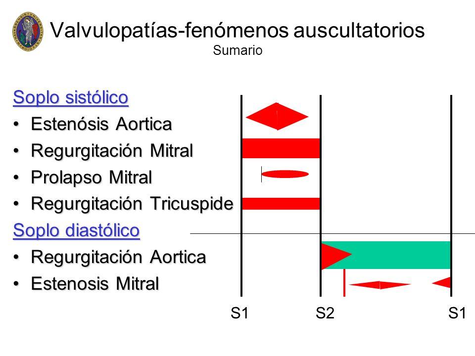 Valvulopatías-fenómenos auscultatorios Sumario Soplo sistólico Estenósis AorticaEstenósis Aortica Regurgitación MitralRegurgitación Mitral Prolapso Mi