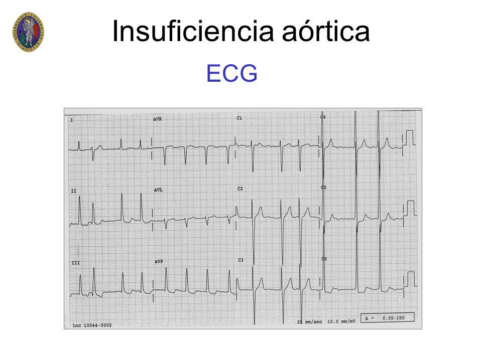 ECG Insuficiencia aórtica