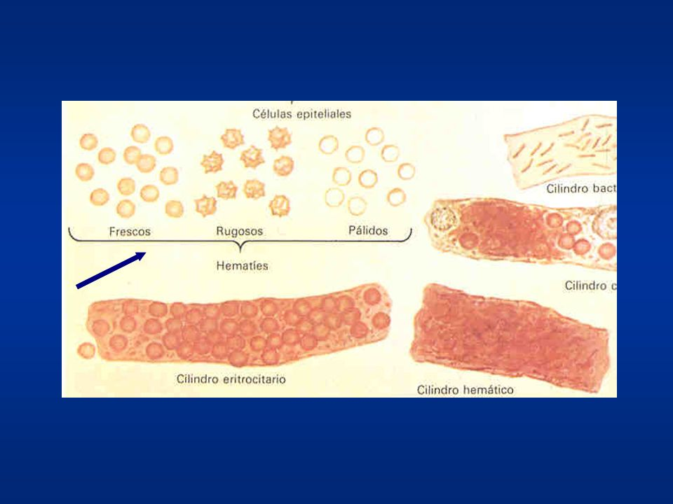 Hematíes Dismórficos Origen glomerular (gn) Alterados por factores mecánicos (paso gn), osmóticos y enzimáticos (túbulo). Formas: anulares, vacíos, po