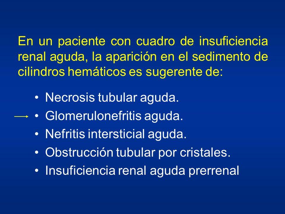 ¿De cuál de los siguientes cuadros es característica la aparición de cilindros hemáticos en el sedimento urinario? Necrosis tubular aguda. Lesión a cu
