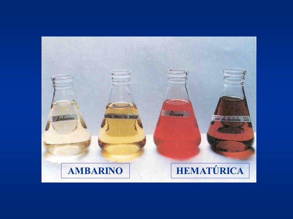 Anormales y Sedimento urinario (II) AnormalesAnormales –Densidad –pH –Glucosa –Bilirrubina –Hemoglobina –Acetona –Proteínas –Urobilina –Nitritos Sedim