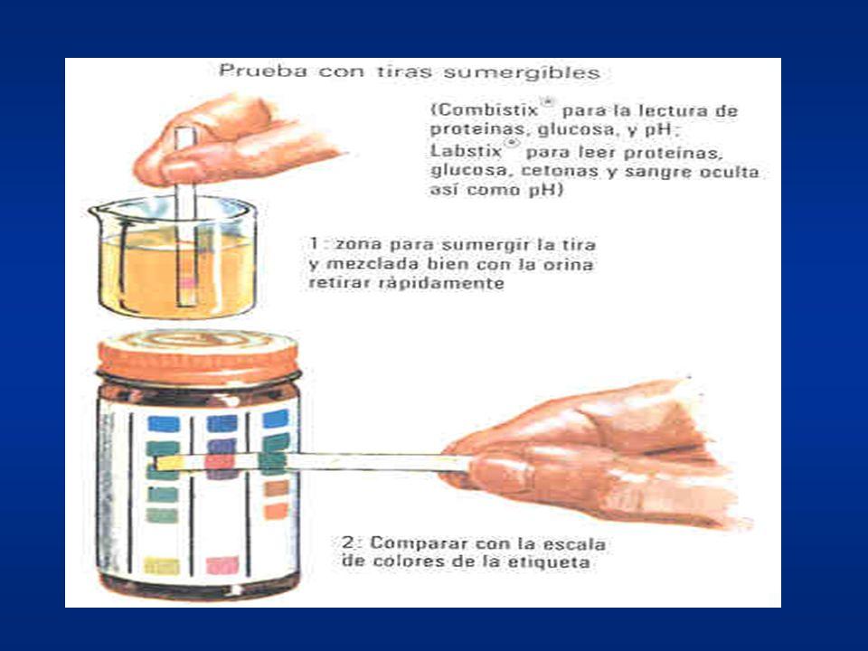 pH urinario Determinación: Tiras colorímétricas Rango amplio (4,5-7,9): –Ácido (<6,5): Fisiológico: ayuno, tras sueño nocturno, ingesta proteínas anim