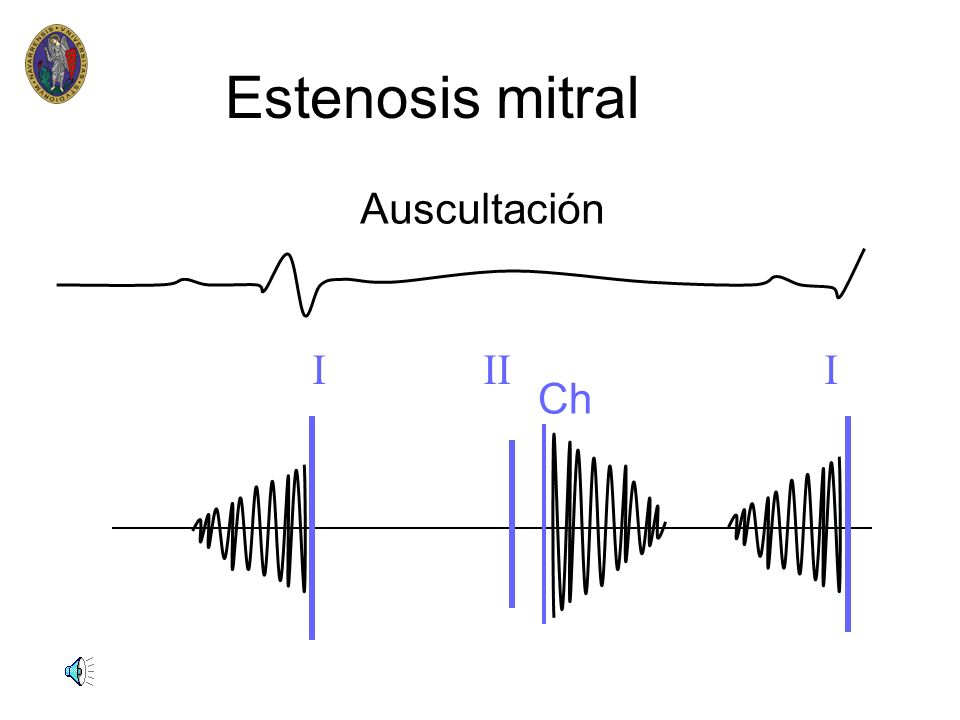Estenosis mitral n n Anamnesis n antecedentes de fiebre reumática(50%) n fatiga,astenia n palpitaciones n hemoptisis n disfonia(compresión) n dolor to
