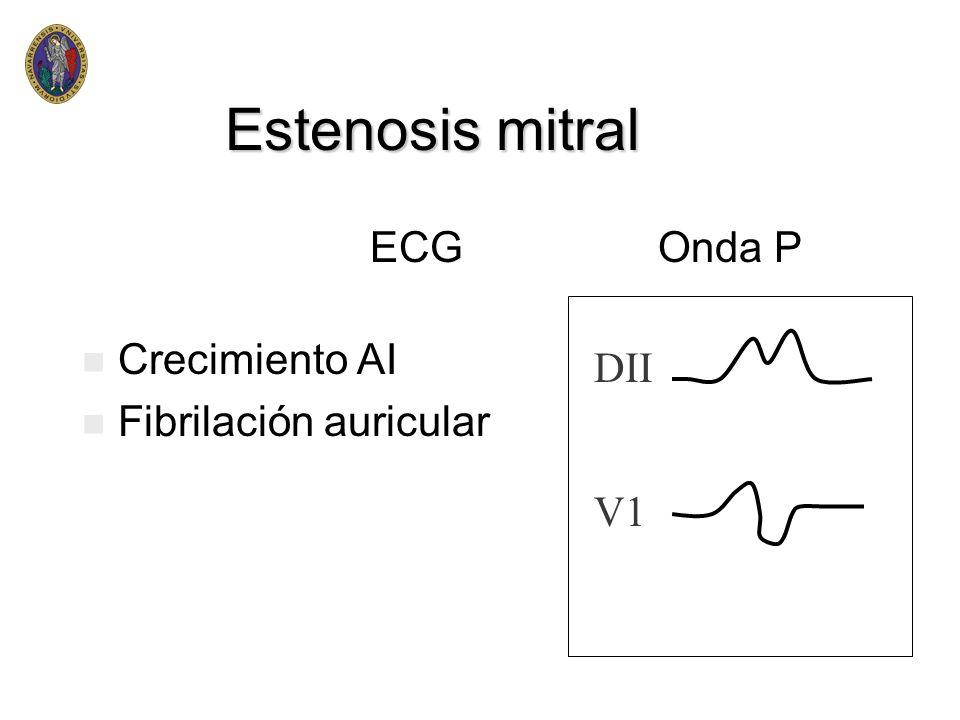 Estenosis mitral I II I Ch >PAI <II-Ch II-Ch