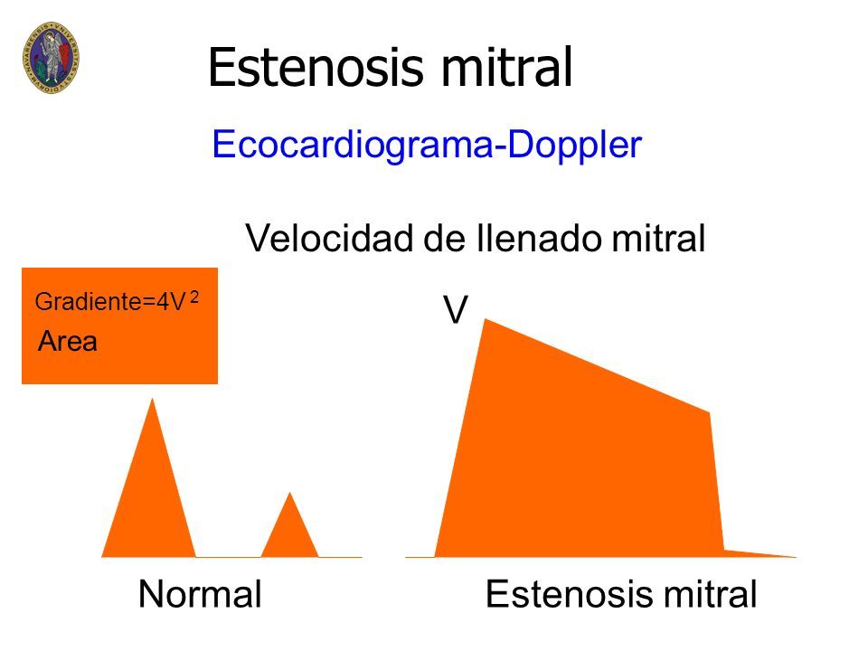 Estenosis mitral Ecocardiograma