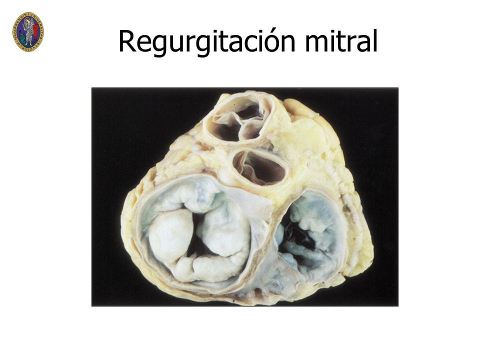 Regurgitación mitral Prolapso mitral