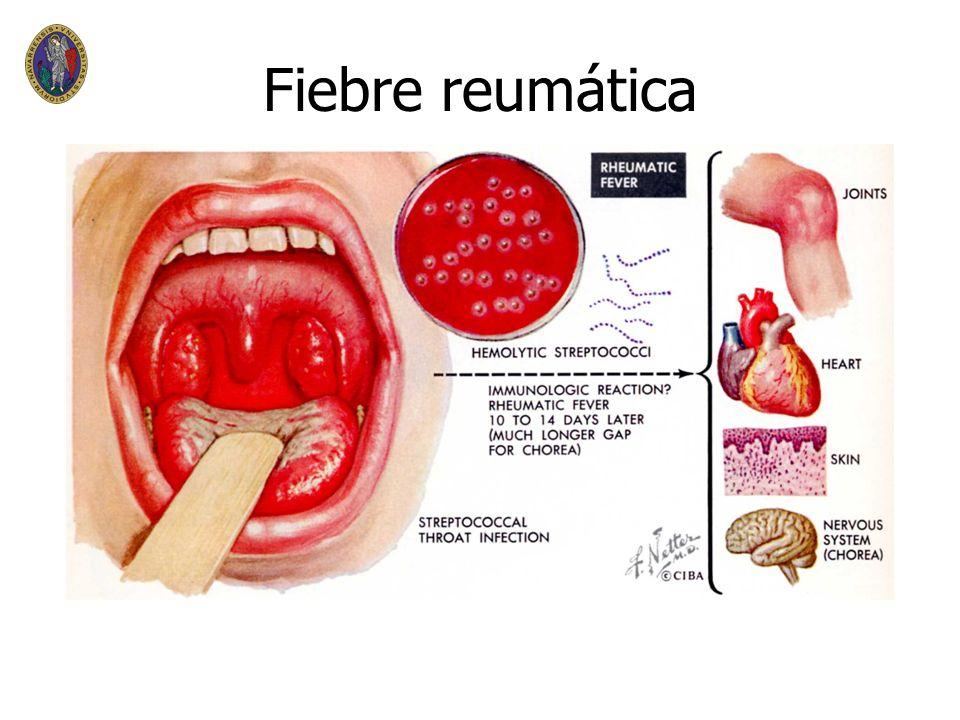 Fiebre reumática n n Enfermedad inflamatoria multisitemica por infección del estreptococo beta hemolítico del grupo A n n Tratamiento y profilaxis con