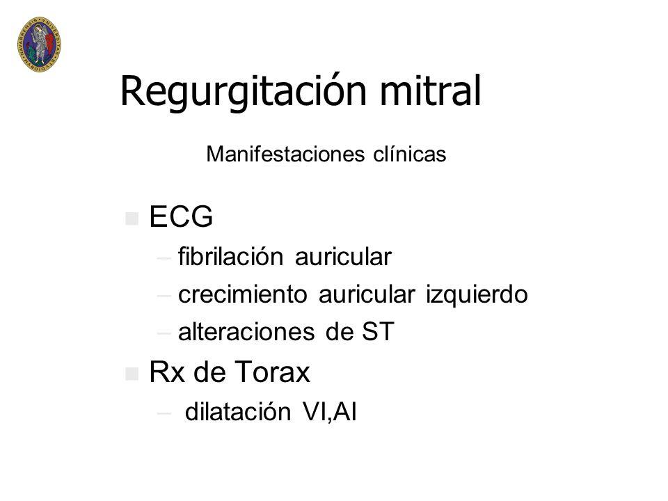 Regurgitación mitral III AUSCULTACION Soplo tardío - -Prolapso -Disf.papilar -MCH III