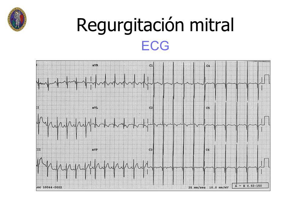 Regurgitación mitral n n ECG – –fibrilación auricular – –crecimiento auricular izquierdo – –alteraciones de ST n n Rx de Torax – – dilatación VI,AI Ma