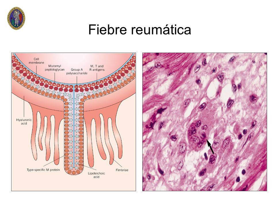 Estenosis mitral n n Anamnesis n antecedentes de fiebre reumática(50%) n fatiga,astenia n palpitaciones n hemoptisis n disfonia(compresión) n dolor torácico(HAP) n ACV Manifestaciones clínicas