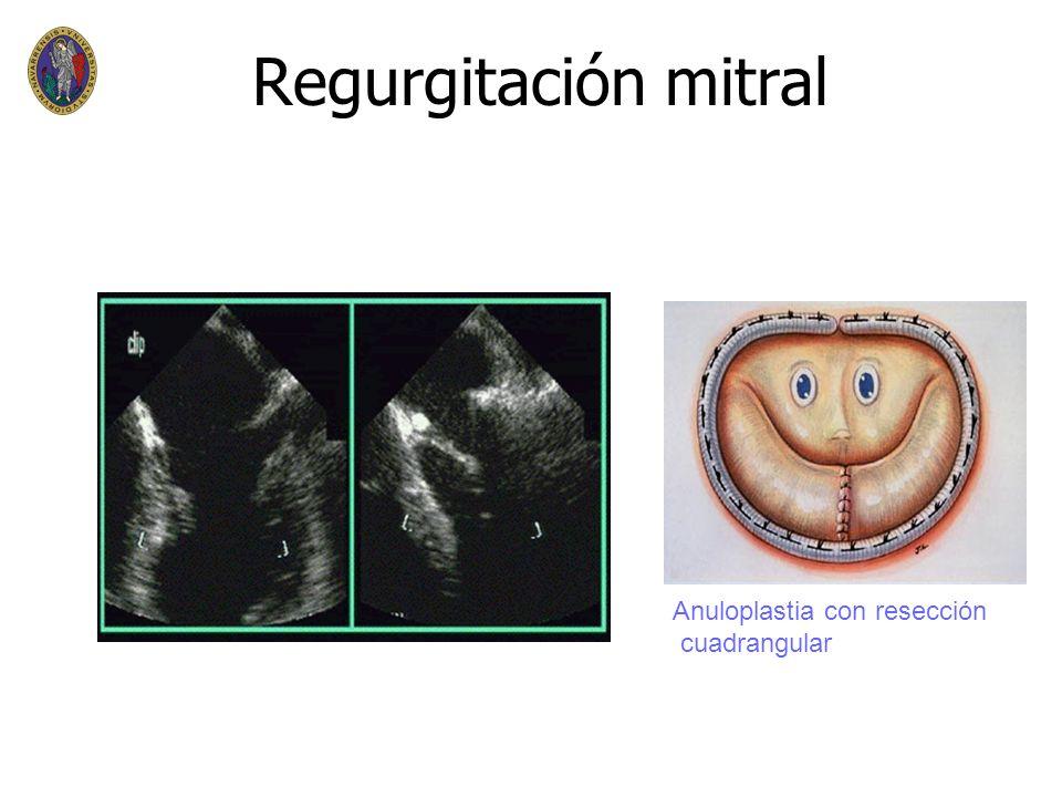 Regurgitación mitral n n Médico n n digital y anticoagulantes en FA n n tratamiento de insuficiencia cardíaca n n Quirúrgico n n INDICACION: n n sinto