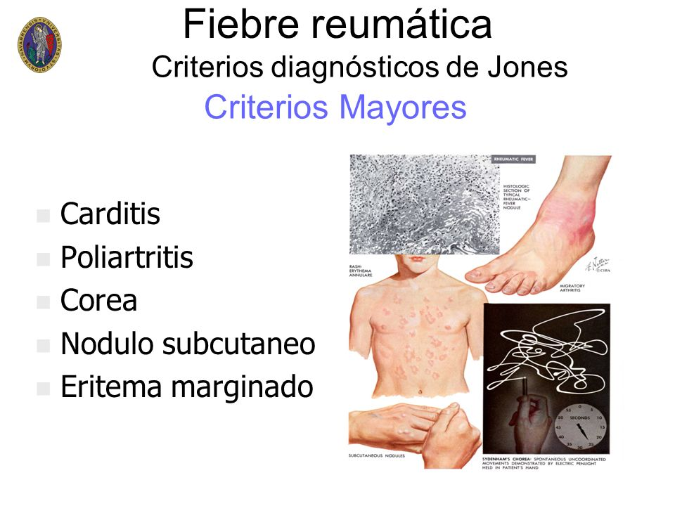 n n Carditis n n Poliartritis n n Corea n n Nodulo subcutaneo n n Eritema marginado Criterios Mayores Criterios diagnósticos de Jones