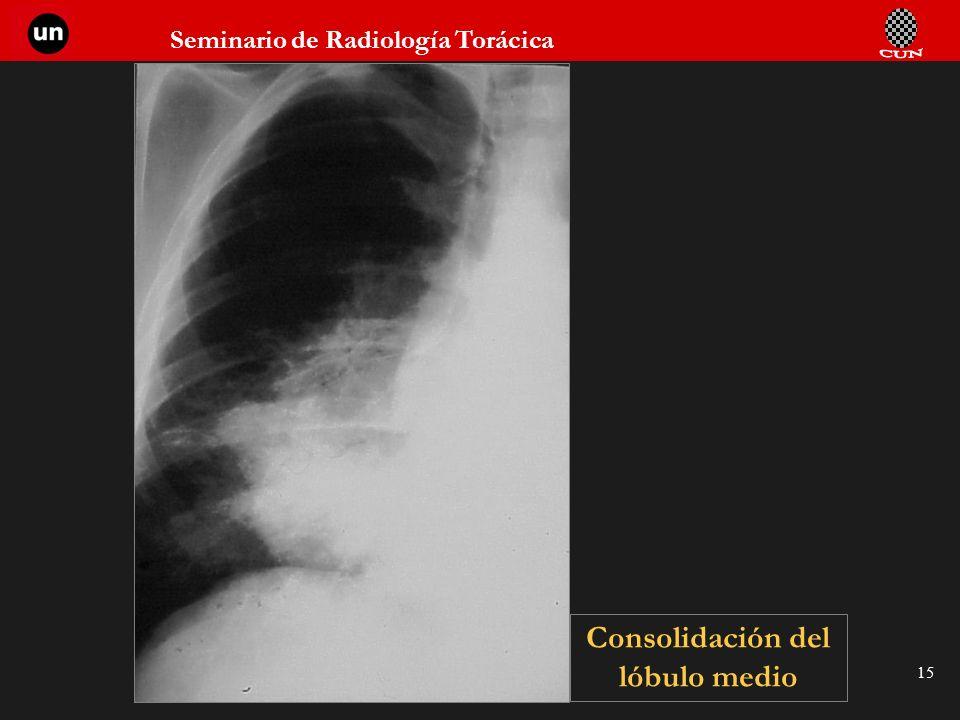 Seminario de Radiología Torácica 15 Consolidación del lóbulo medio