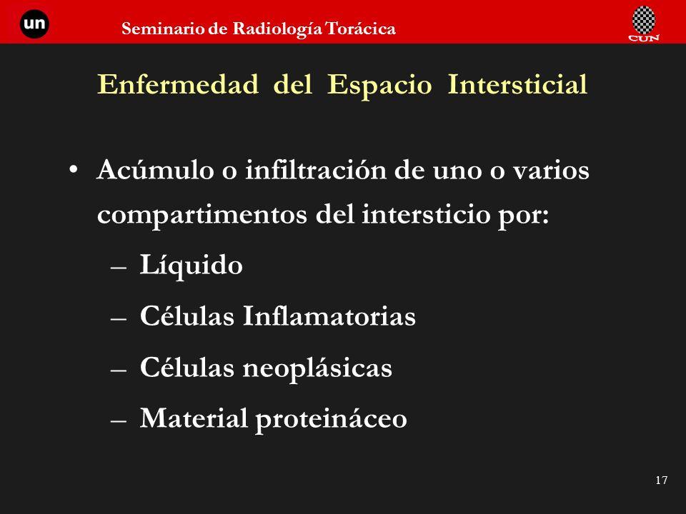 Seminario de Radiología Torácica 17 Enfermedad del Espacio Intersticial Acúmulo o infiltración de uno o varios compartimentos del intersticio por: –Lí