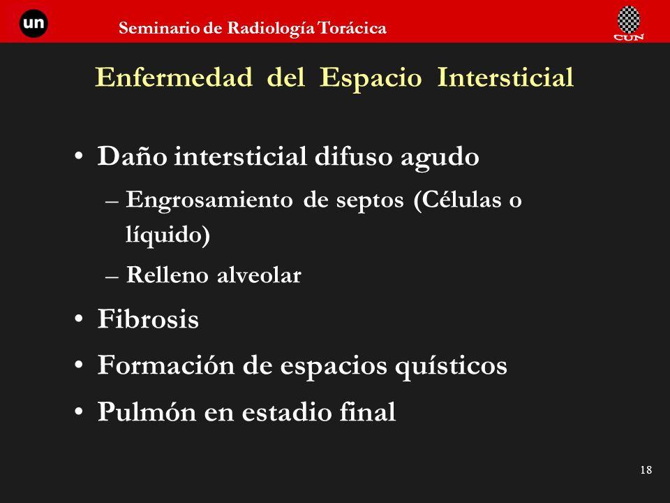 Seminario de Radiología Torácica 18 Enfermedad del Espacio Intersticial Daño intersticial difuso agudo –Engrosamiento de septos (Células o líquido) –R