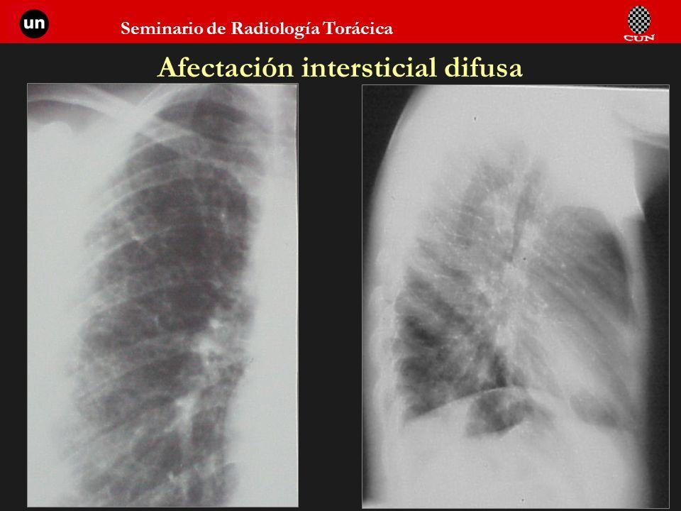 Seminario de Radiología Torácica 23 Afectación intersticial difusa