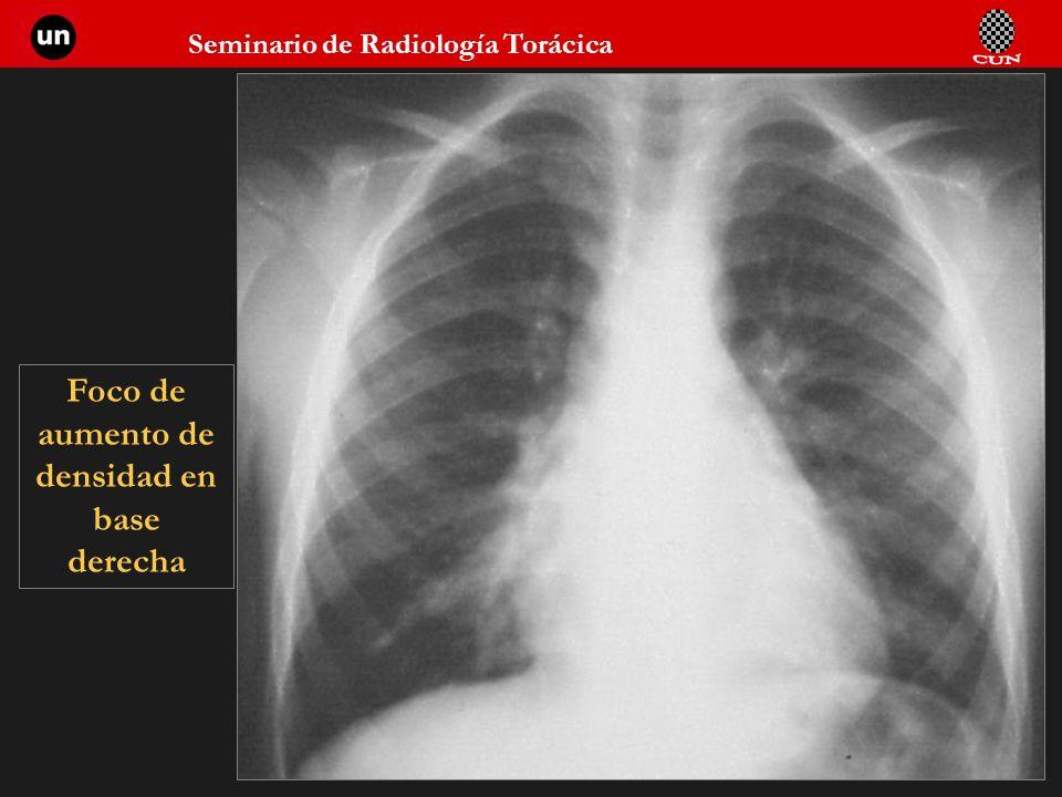 Seminario de Radiología Torácica 26 Foco de aumento de densidad en base derecha