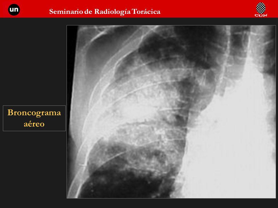 Seminario de Radiología Torácica 27 Broncograma aéreo