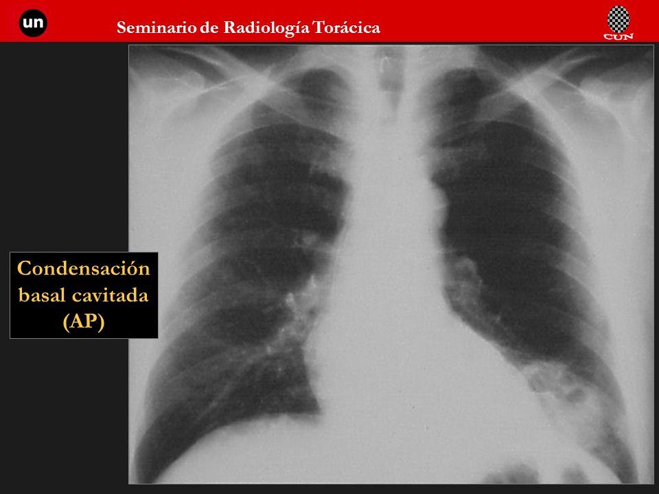 Seminario de Radiología Torácica 28 Condensación basal cavitada (AP)