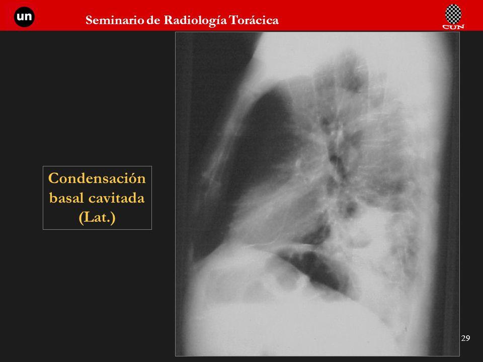 Seminario de Radiología Torácica 29 Condensación basal cavitada (Lat.)