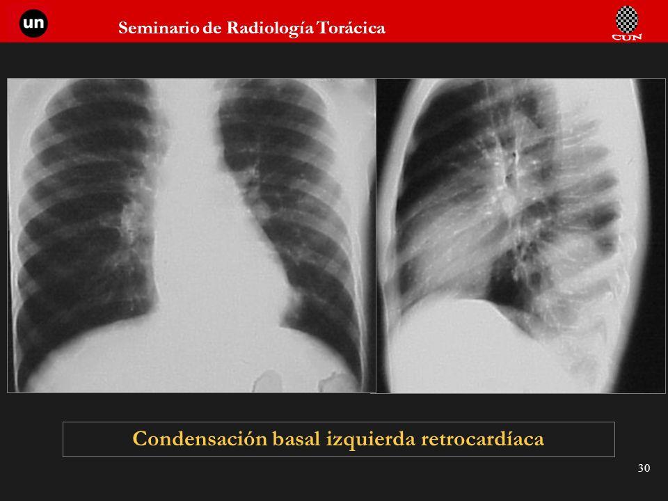 Seminario de Radiología Torácica 30 Condensación basal izquierda retrocardíaca