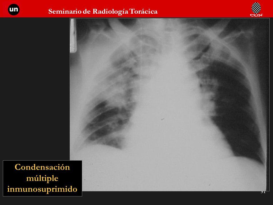 Seminario de Radiología Torácica 31 Condensación múltiple inmunosuprimido