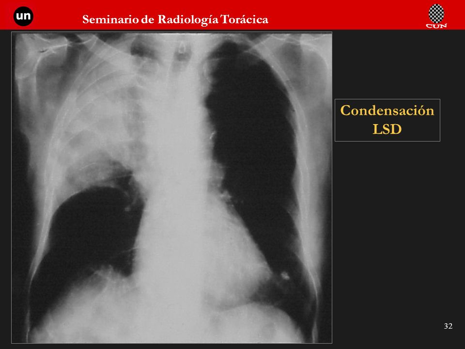 Seminario de Radiología Torácica 32 Condensación LSD