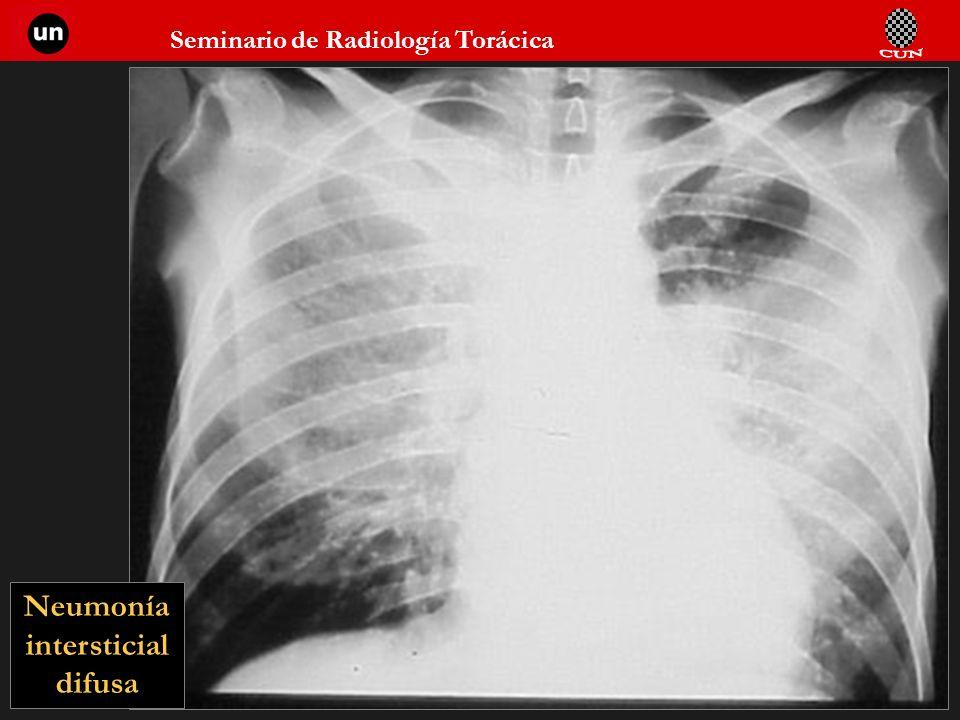 Seminario de Radiología Torácica 34 Neumonía intersticial difusa