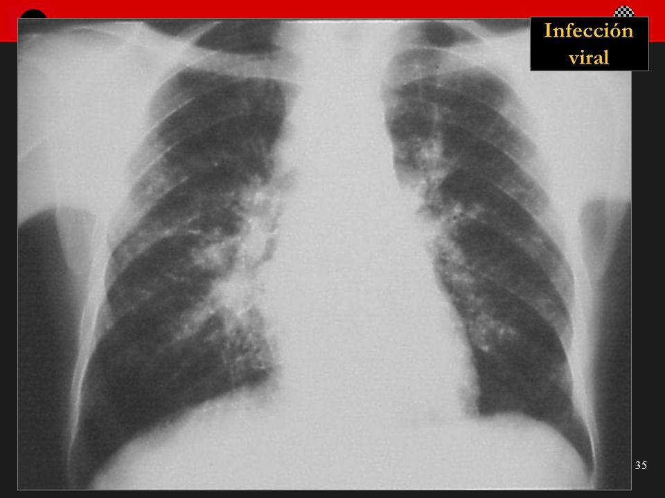 Seminario de Radiología Torácica 35 Infección viral