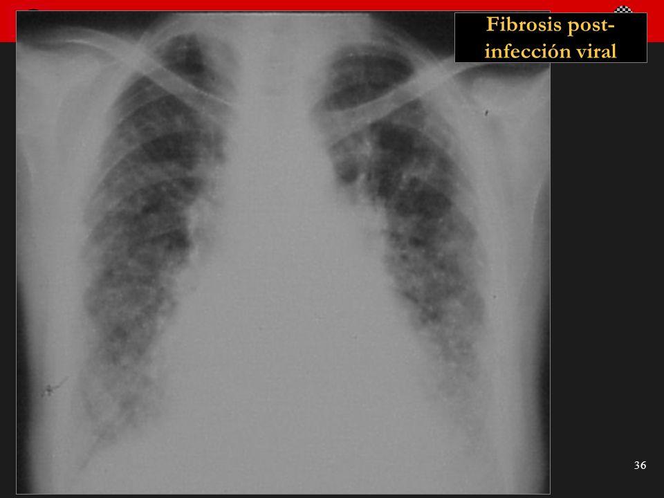 Seminario de Radiología Torácica 36 Fibrosis post- infección viral