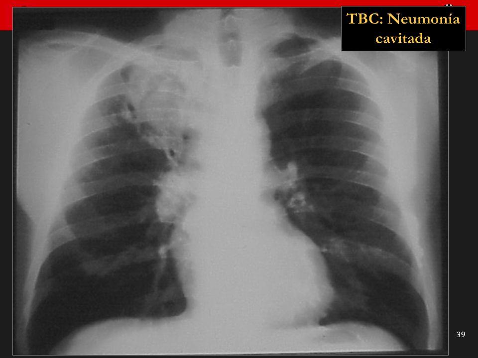 Seminario de Radiología Torácica 39 TBC: Neumonía cavitada